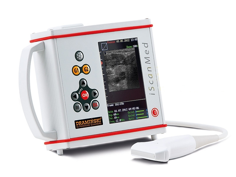 Ultragarsinis skeneris iScanMed